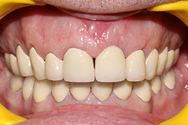 Cosmetic Treatment of Teeth In Ahmedabad - Case Photo 4