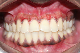 Dental Laser Treatment Ahmedabad - Case Photo 2
