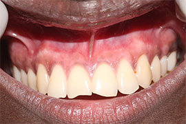 Dental Laser Treatment Ahmedabad - Case Photo 4