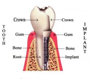 %dentist ahmedabad india