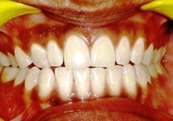 dentist ahmedabad india