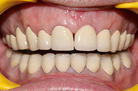 Cosmetic Treatment of Teeth In Ahmedabad - Case Photo 5