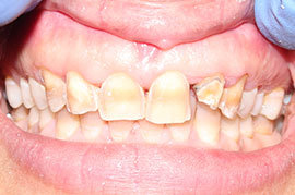 Cosmetic Treatment of Teeth In Ahmedabad - Case Photo 6