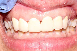 Cosmetic Treatment of Teeth In Ahmedabad - Case Photo 7