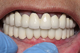 Dental Implant In Ahmedabad Treatment 3