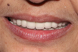 Dental Implant In Ahmedabad Treatment 4