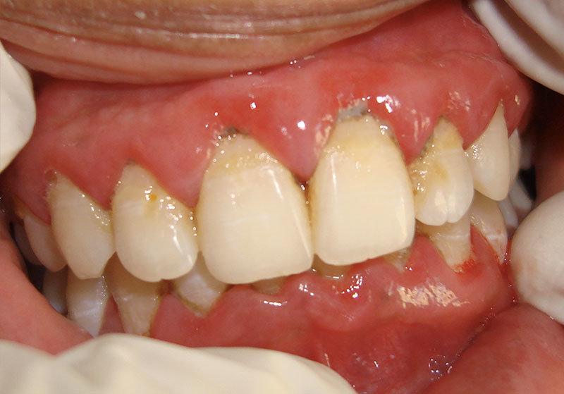 Periodontist Ahmedabad Implantologist India Gum Disease