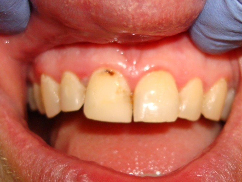 Are You Looking For A Dentist Or Dental Specialist In