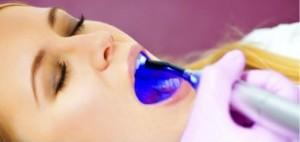 Laser Dentist Ahmedabad India